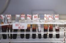 Aids, via libera in Europa a primo medicinale per prevenire Hiv