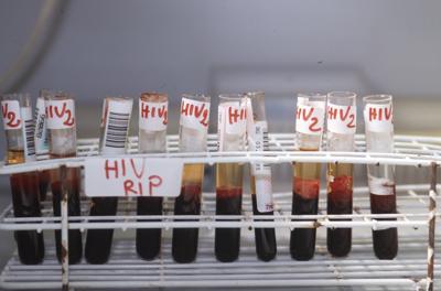 hiv_aids_provette_fg